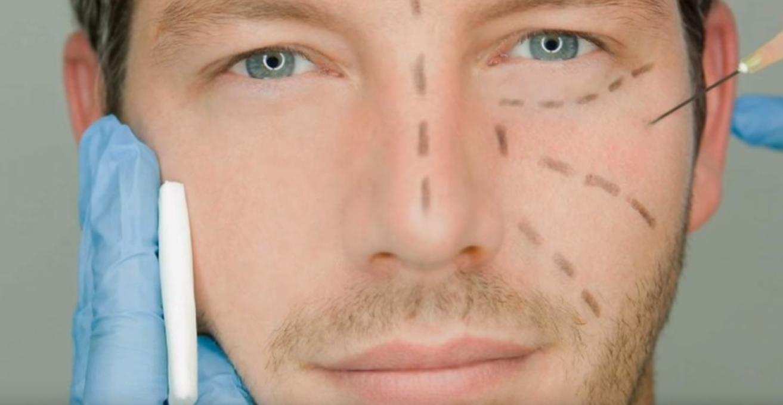 Cirugía plástica para mejorar tu físico y tu estabilidad mental y emocional